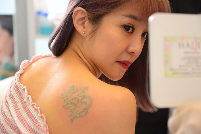 Xinyi's tattoo significantly changed and turned lighter after her first session.
