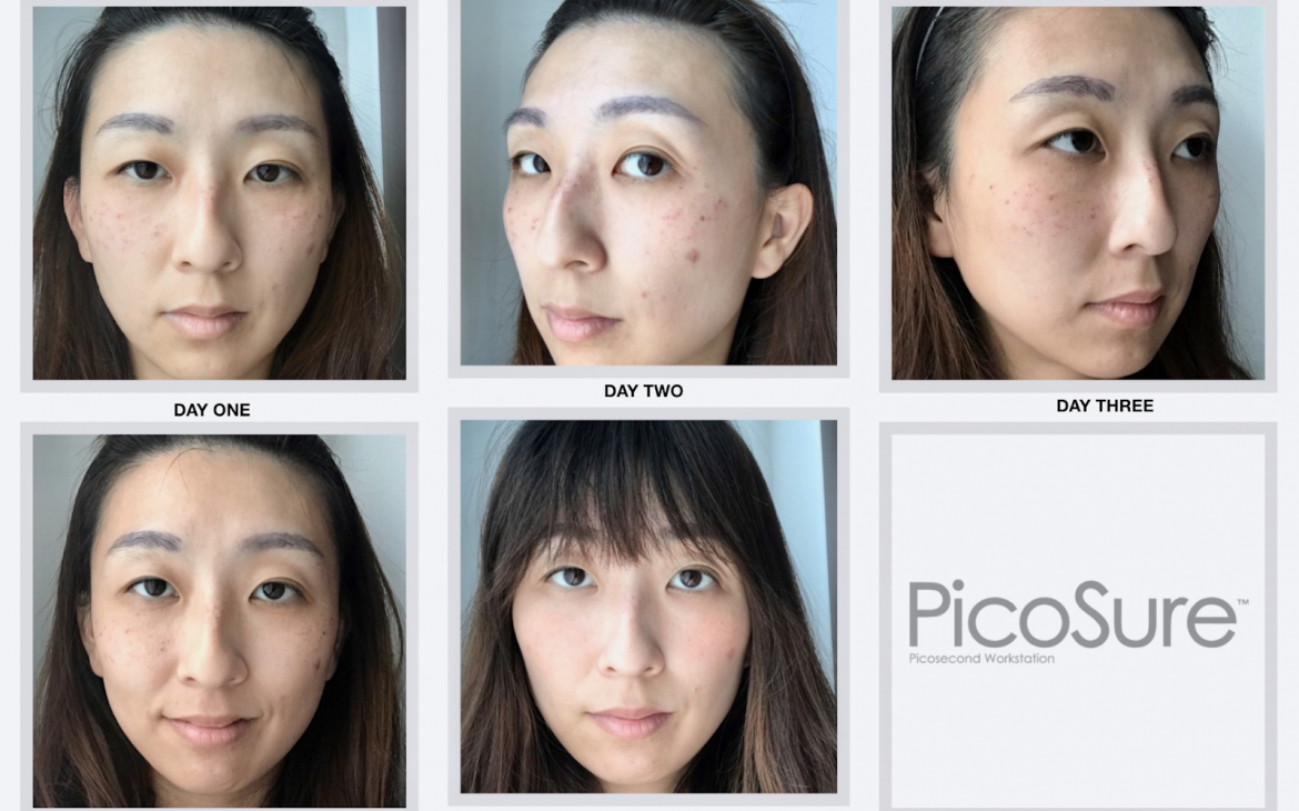 pico laser treatment by days after the procedure