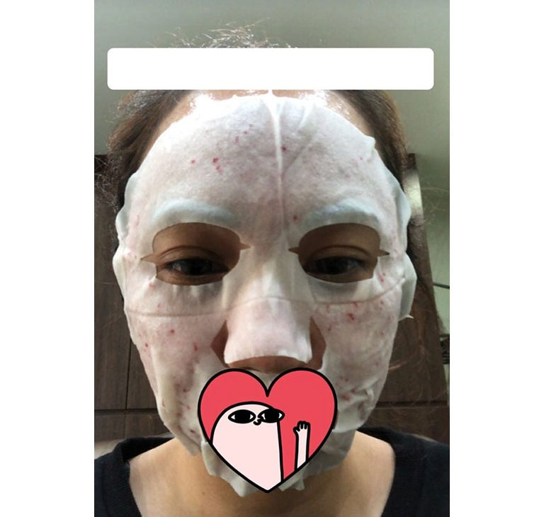 pico laser treatment cold mask after the procedure
