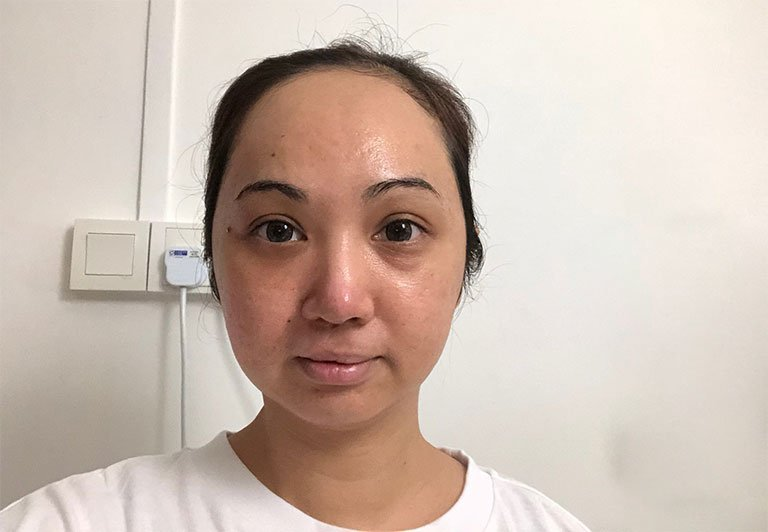 pico laser treatment results hidaya