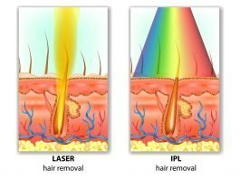 IPL and Laser Hair Removal