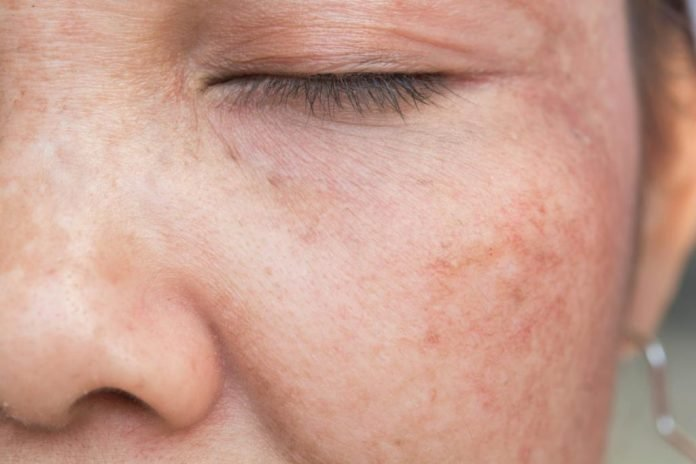 Q-Switched Lasers pigmentation skin ageing woman