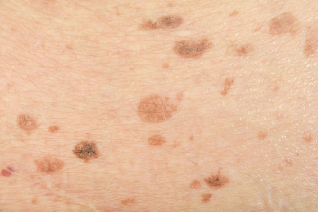 Q Switched Lasers pigmentation skin melasma