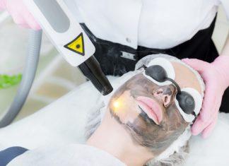 carbon laser treatment close view