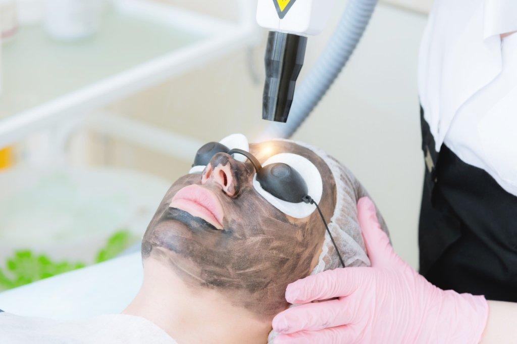 carbon laser treatment fron view