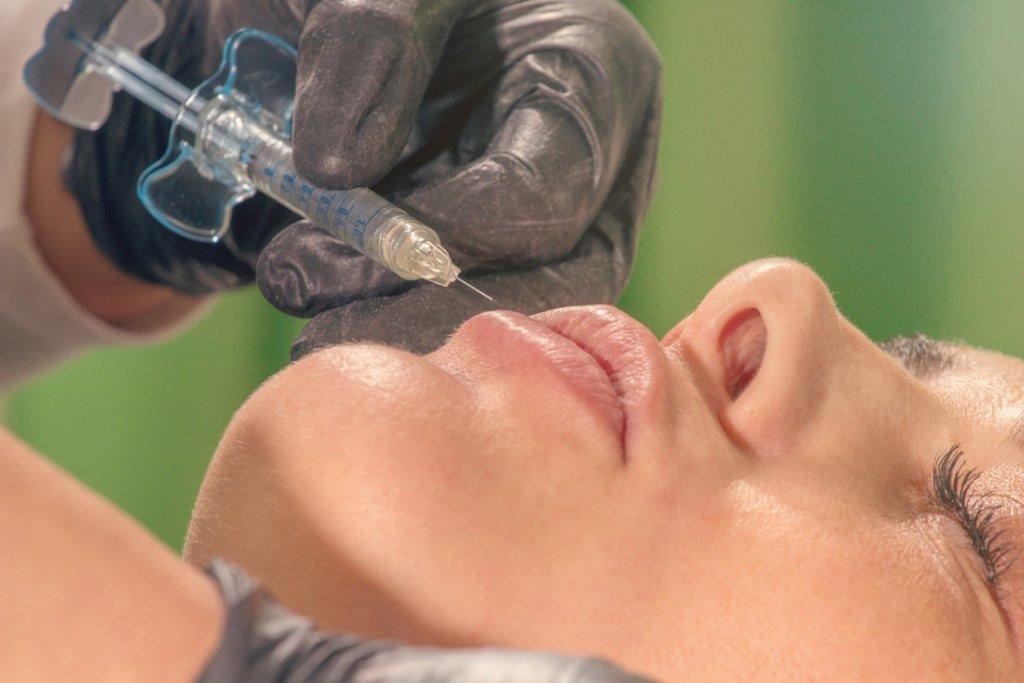 dermal fillers lip injection