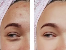 before and after procedures