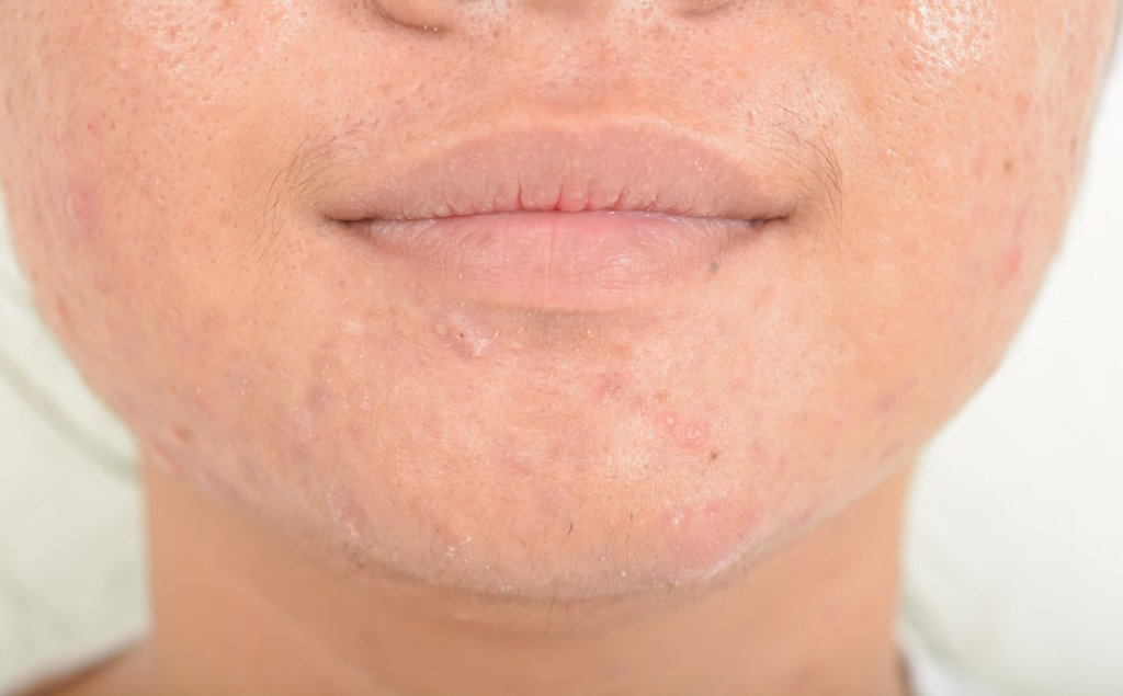 hydratation face scarring