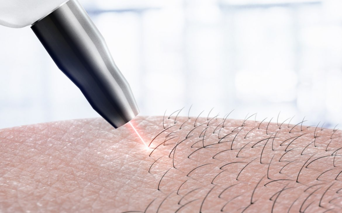 laser hair removal on body parts