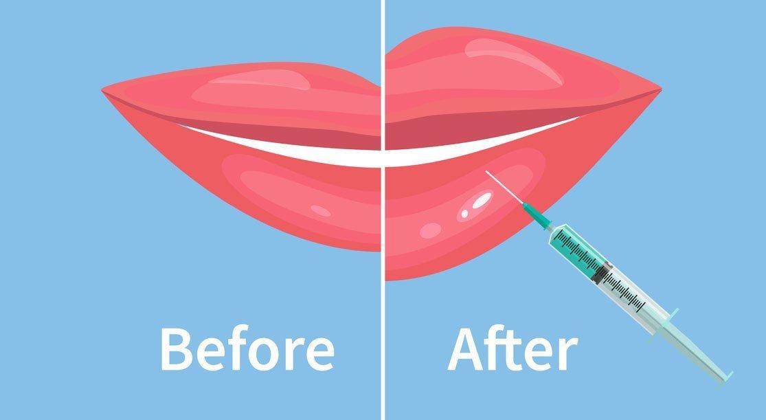 lip augmentation filler illustration