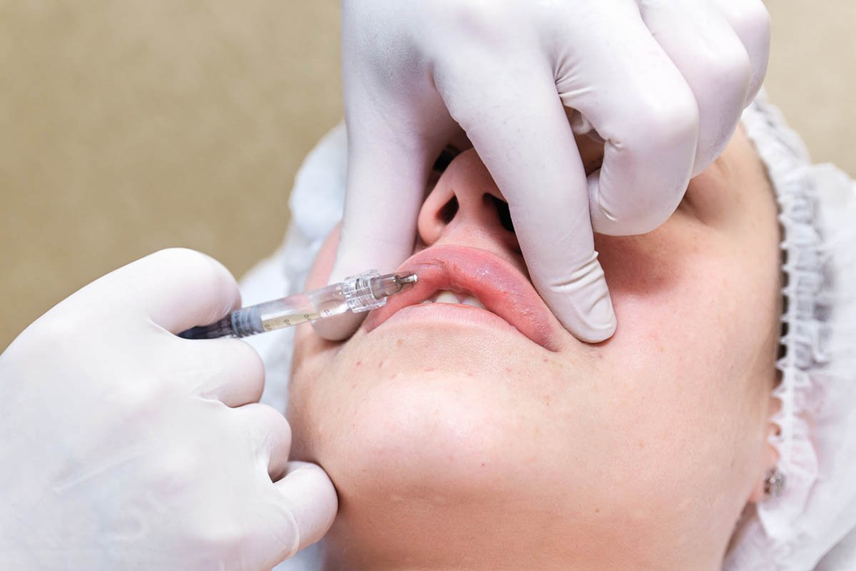 lip filler injection procedure