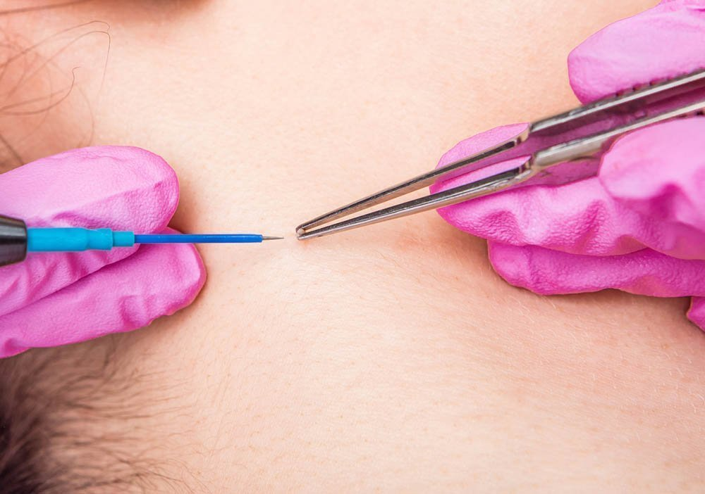 Mole Removal in Singapore Explained by Aesthetic Doctor