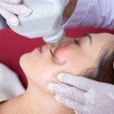 laser treatment on cheeks