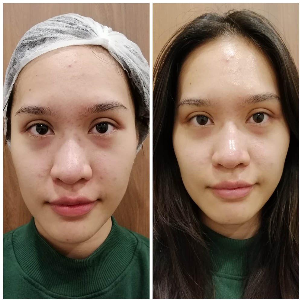 Loh Ling Ying - before-after HydroPeel Facial
