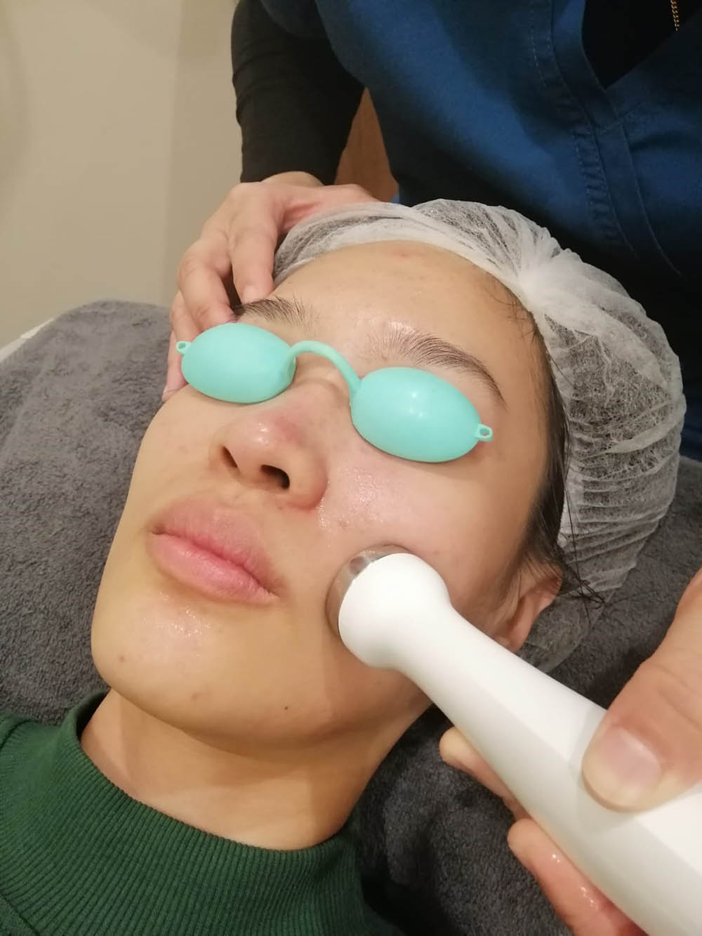 Loh Ling Ying blackheads/whiteheads extraction