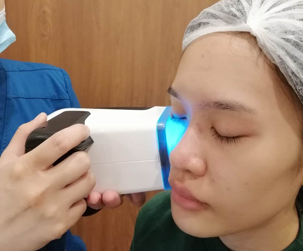 Loh Ling Ying HydroPeel Facial day 2