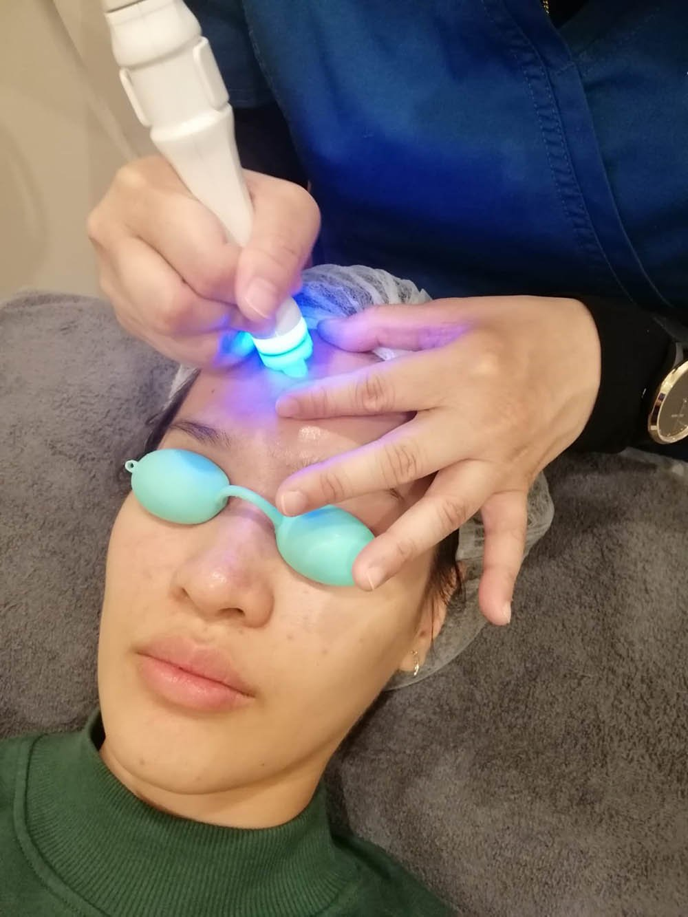 Loh Ling Ying blackheads whiteheads extraction procedure