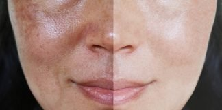 Melasma before-after