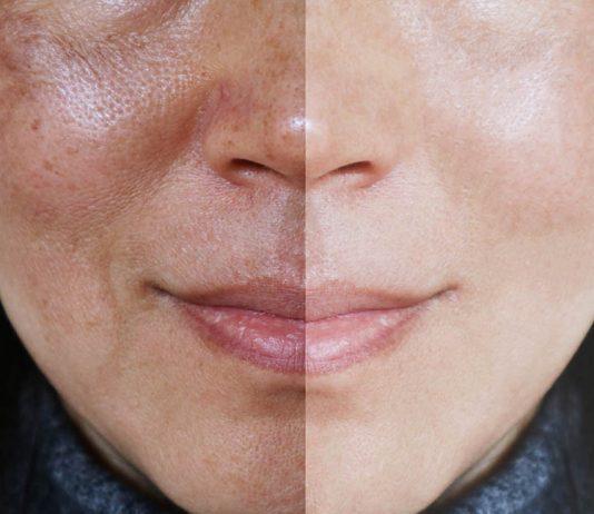 Melasma before-after