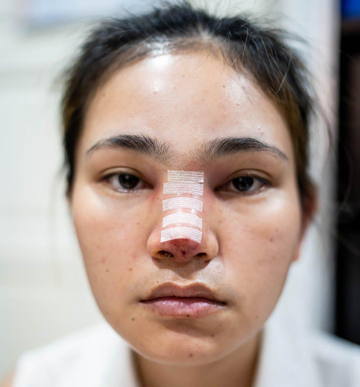 Rhinoplasty recovery