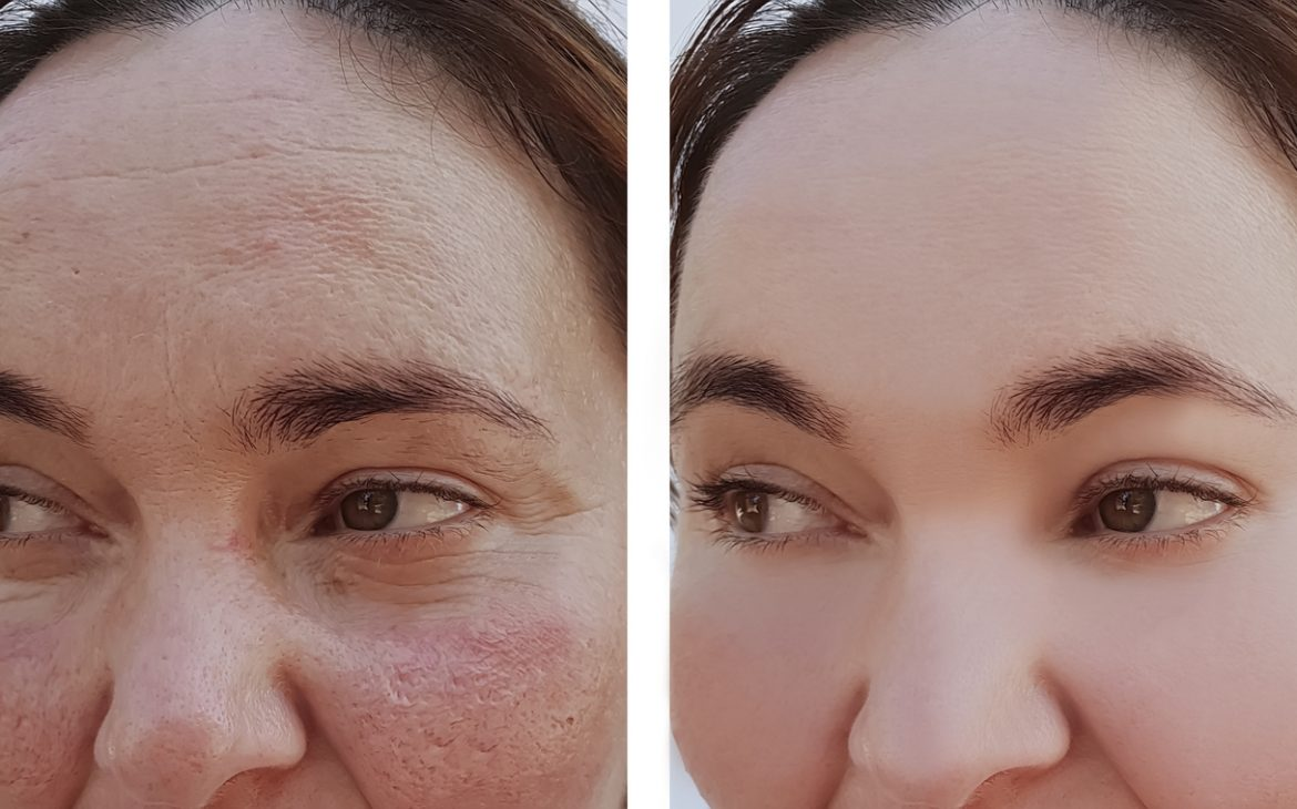 Rosacea skin before-after