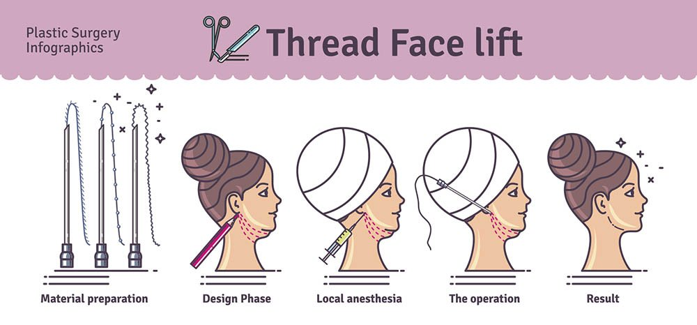 Thread face lift