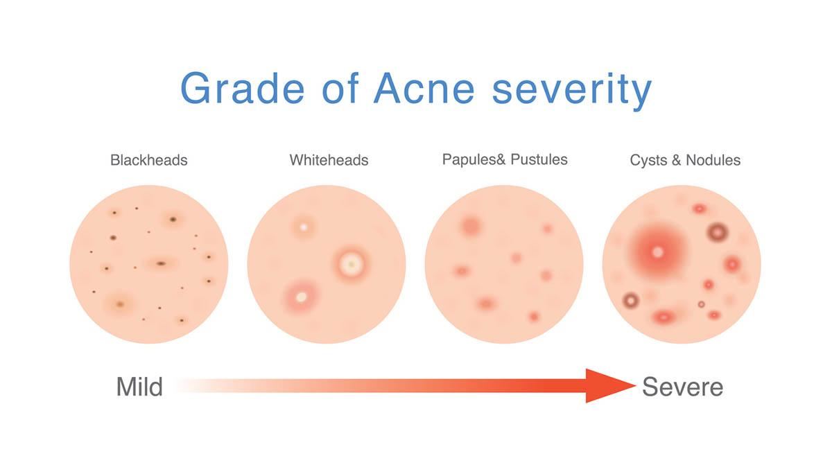 Grade of acne severity