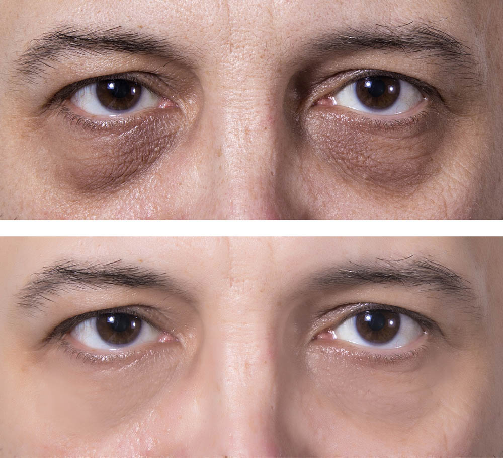 Dark eye circles treatment BEFORE and AFTER