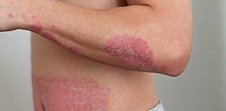 man with eczema