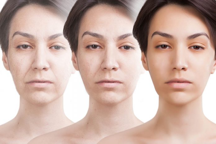 Ellanse Filler Guide – Singapore Aesthetic Clinic Prices