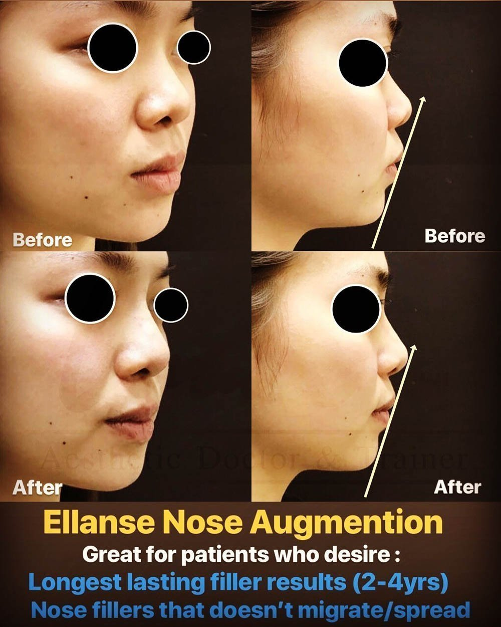 Ellanse nose augmentation