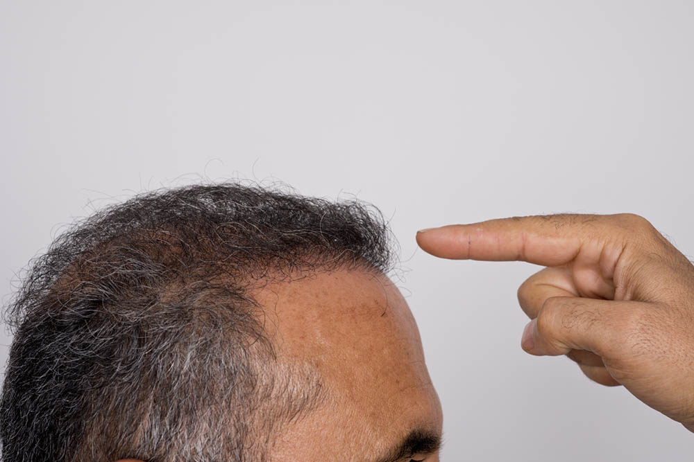 Six months after hair transplant