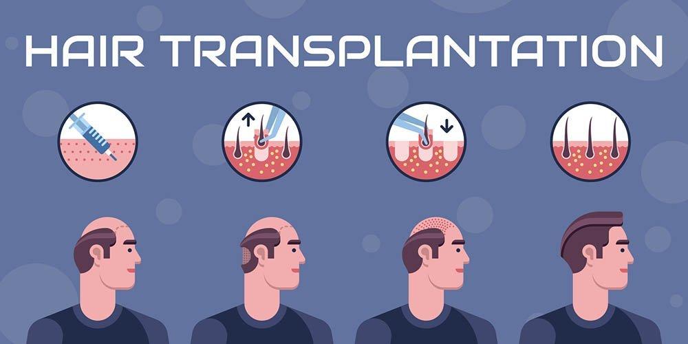 Hair transplantation steps