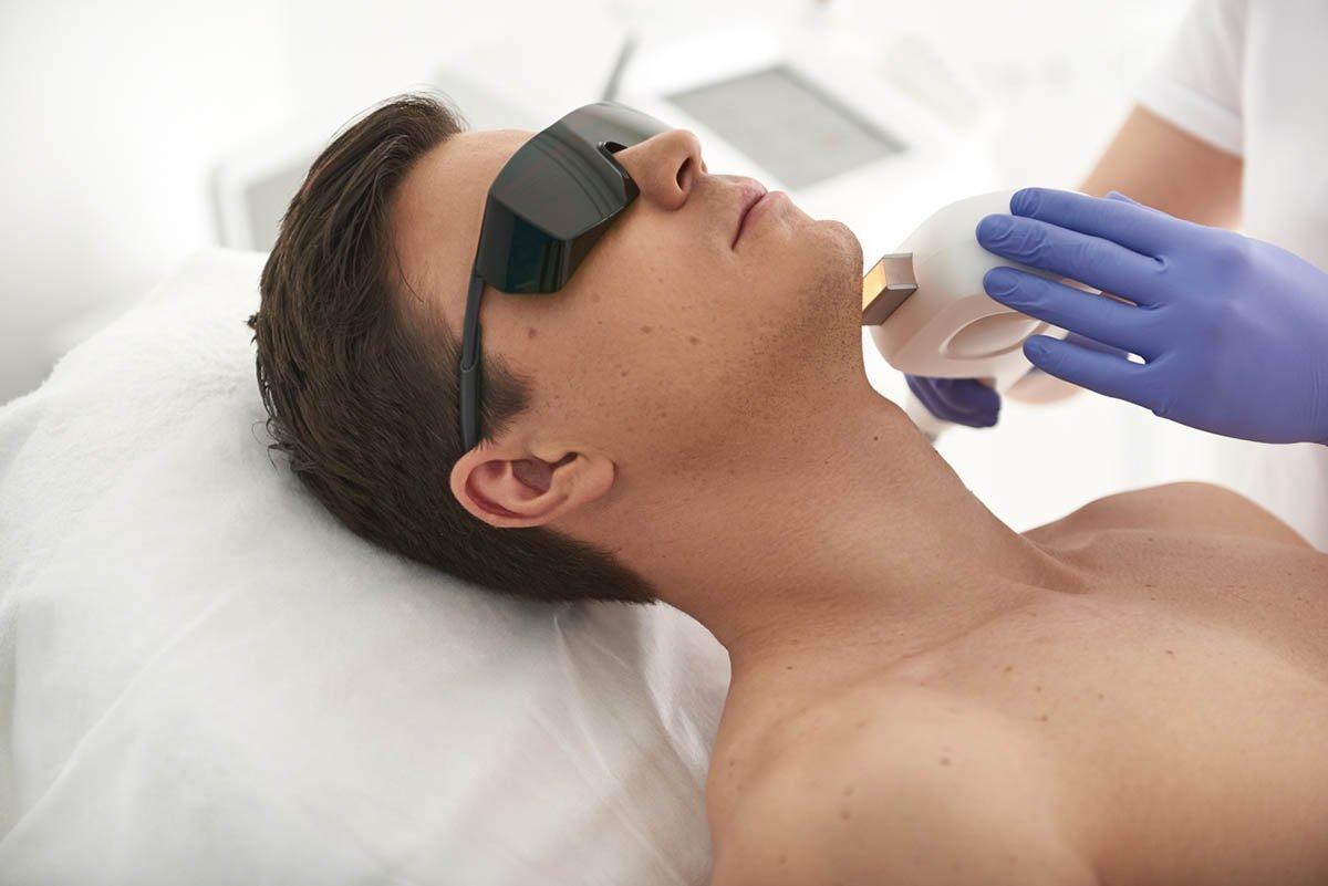 man undergoing facial hair removal procedure