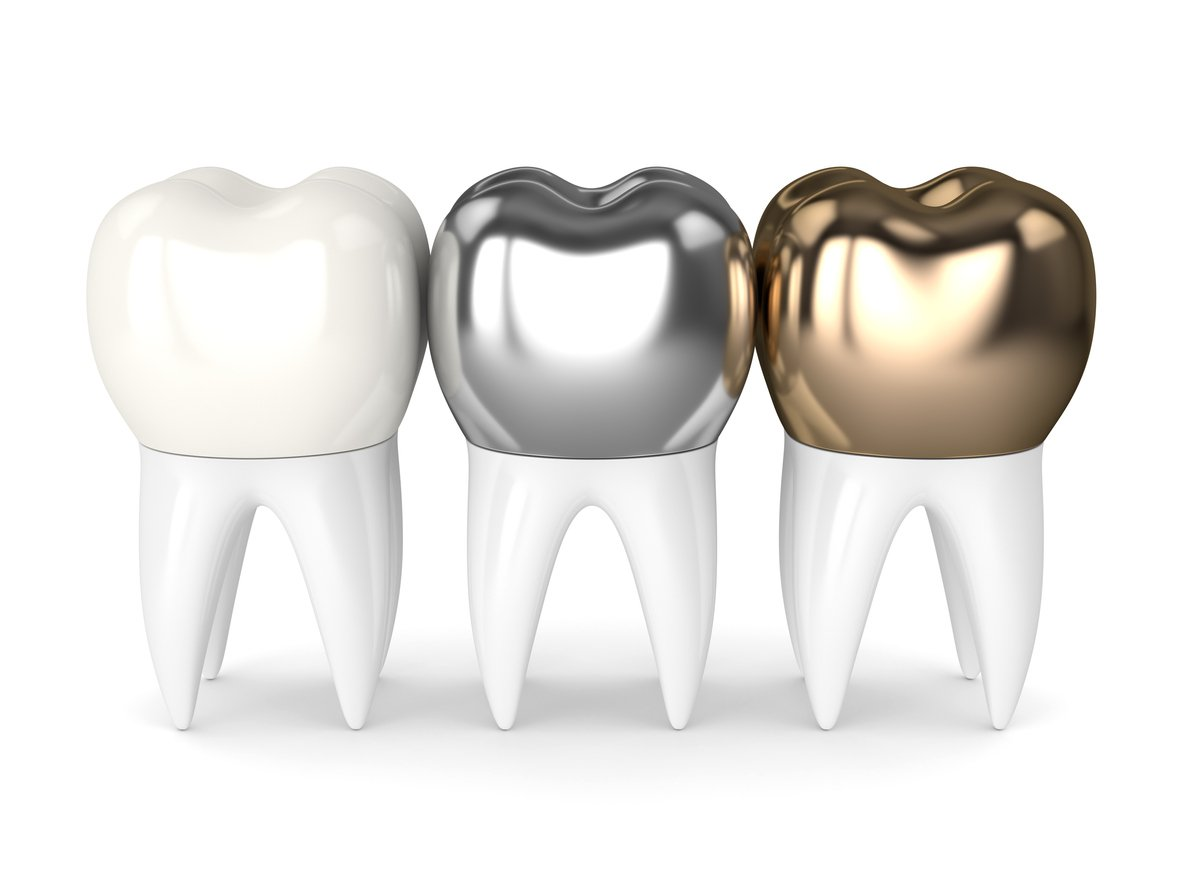 different-types-of-dental-crown