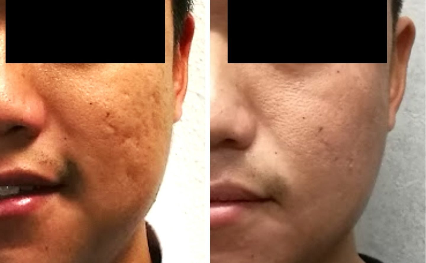 Before and After Acne Scar Removal in Singapore by Dr Chua Cheng yu