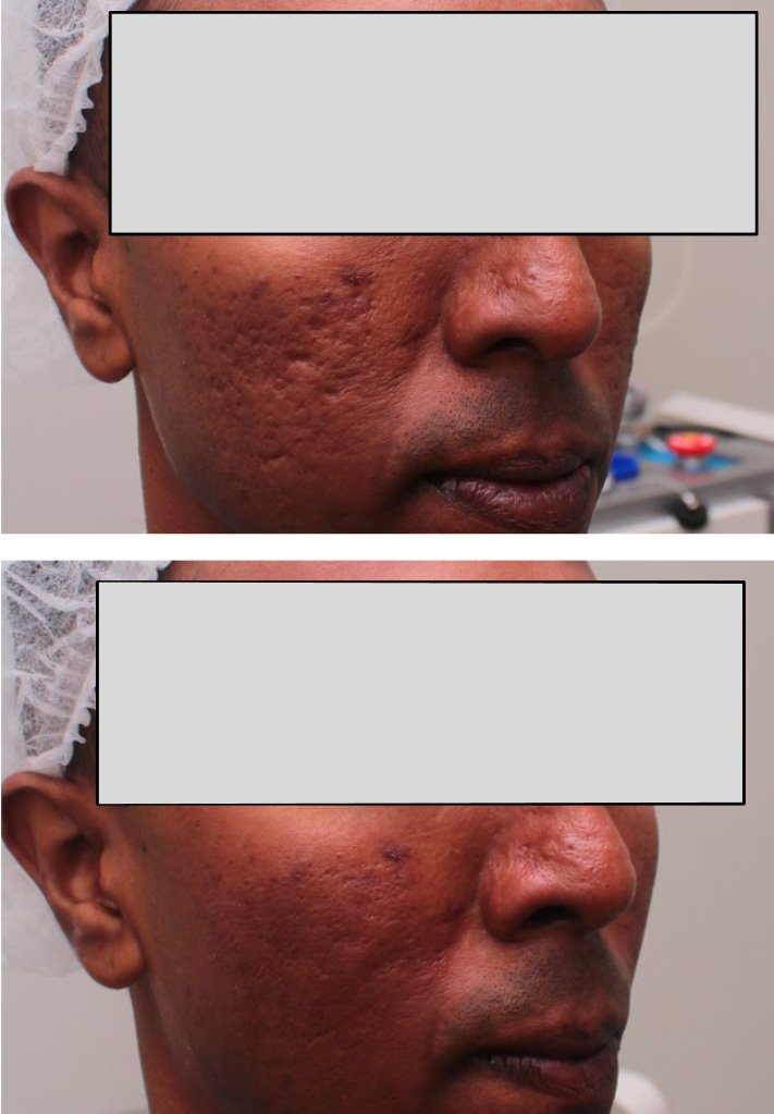 Before and After Acne Scar Removal by Dr Chua Cheng Yu