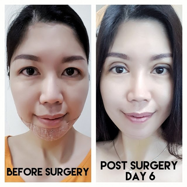 before and after Double eyelid surgery at allure plastic surgery in Singapore
